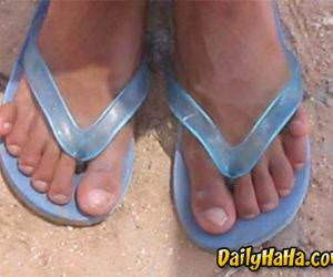 These are some ugly toes