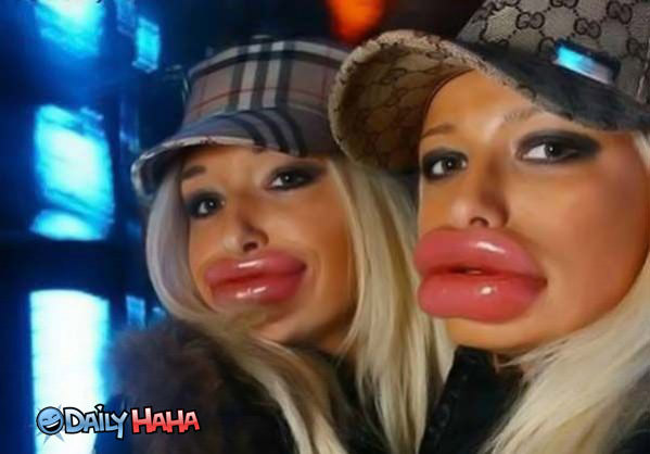 Fatty fat lips