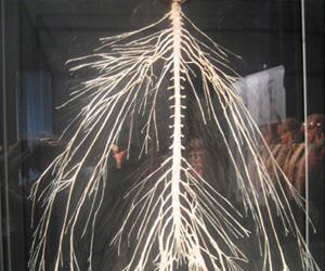 nervous system funny picture