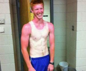 One Amazing Sunburn funny picture