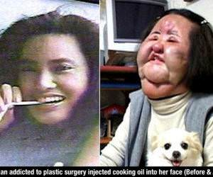 Plastic Surgery Addict funny picture