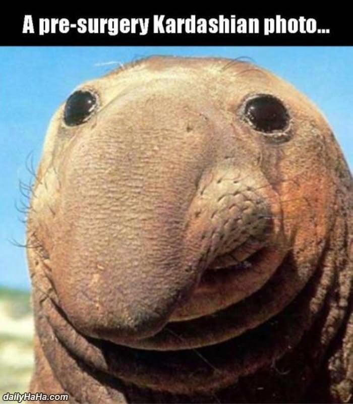 pre surgery kardashian photo funny picture