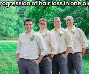 progression of hair loss funny picture