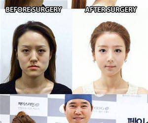 some plastic surgery funny picture