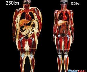 The Fat Difference funny picture