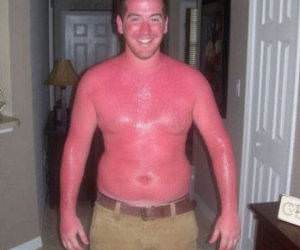 Very Red Sunburn