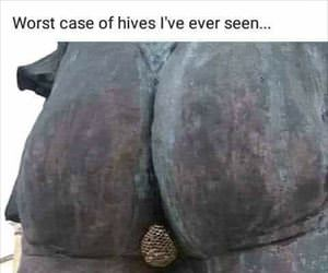 worst case of hives