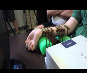 Paralyzed man moves his hand controlled by his own brain for the first time Funny Video