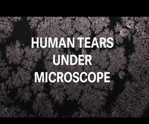 human tears under microscope Funny Video
